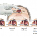 turbinoplastia inferioara